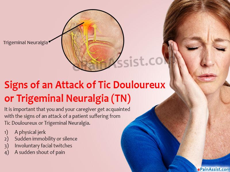 Tic Douloureux or Trigeminal Neuralgia