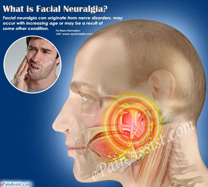 What is Facial Neuralgia?