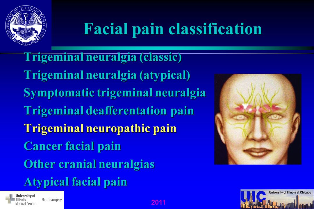 facial neuralgia