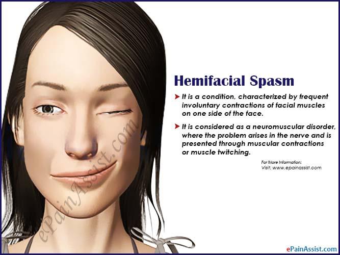 Hemifacial Spasm: Causes, Symptoms, Treatment, Exercises