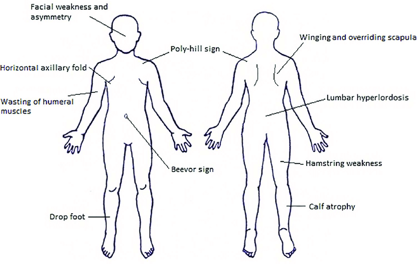 Characteristic signs of facioscapulohumeral muscular dystrophy.