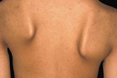 Symptoms of Facioscapulohumeral Muscular Dystrophy. Website-ScapularFixation