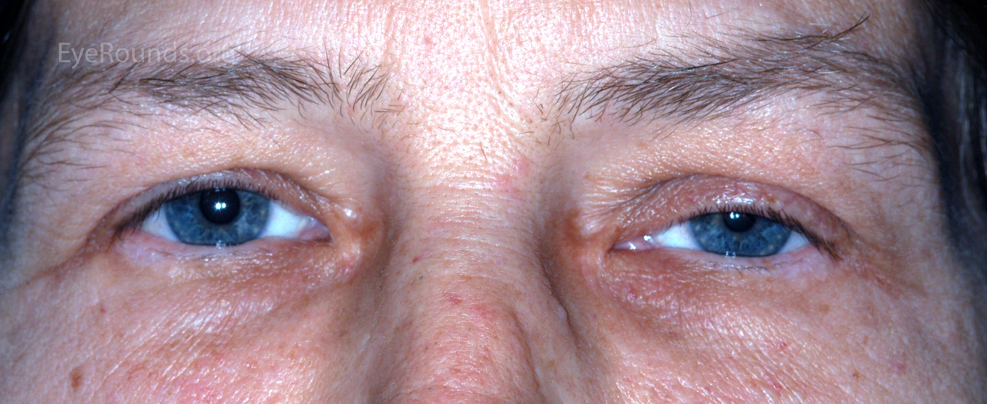 Mild ptosis and miosis of the left eye.