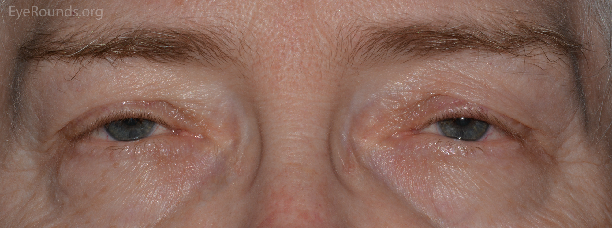 ilateral ptosis. Note the decreased margin reflex distance (MRD1). The  corneal light