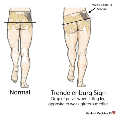 Hip girdle muscles are responsible for keeping the pelvis level when  walking. If you have weakness on one side, this will lead to a drop in the  pelvis on