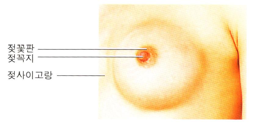 galactacrasia