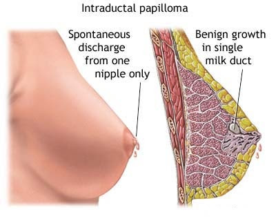 Picture 2 – Galactorrhea Image