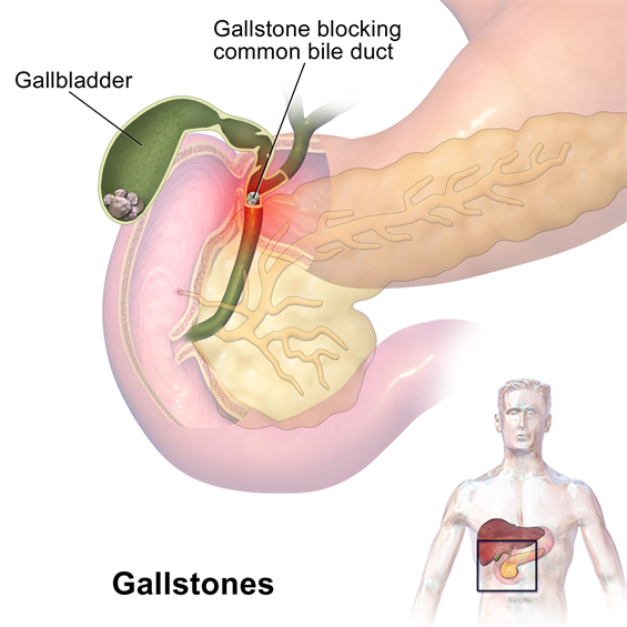Gallstones can cause sudden pain in the upper right abdomen. This pain,  called a gallbladder attack or biliary colic, occurs when gallstones block  the ducts