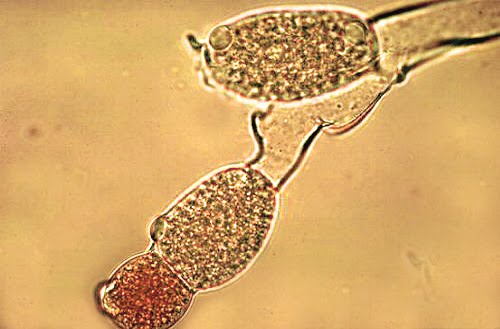 Figure 7: Young gametothallus forming terminal, dichotomous branches and  rhizoids from the basal cell.