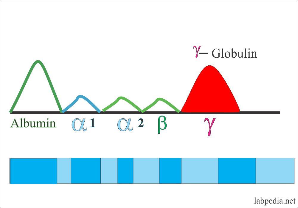 Increased γ- globulin is seen in: