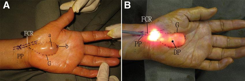 Endoscopic ganglionectomy of palmar ganglion of the left hand via |  Download Scientific Diagram