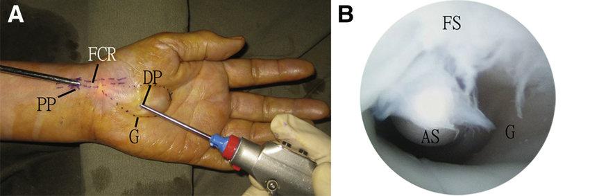 ganglionectomy