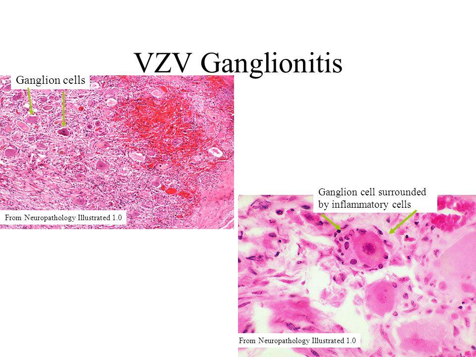 VZV Ganglionitis Ganglion cells