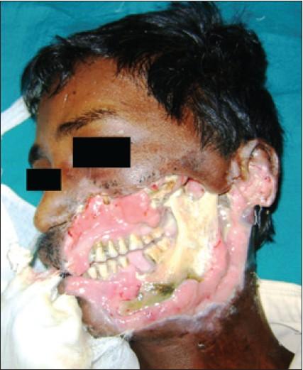 Cancrum oris: A devastating orofacial gangrene Reddy BP, Reddy B S, Kiran  G, Chembolu N - J Dr NTR Univ Health Sci