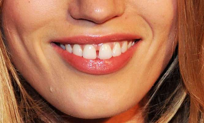 Is The Gap Between Your Teeth A Sign Of Good Luck Or Bad Luck? Find Out!