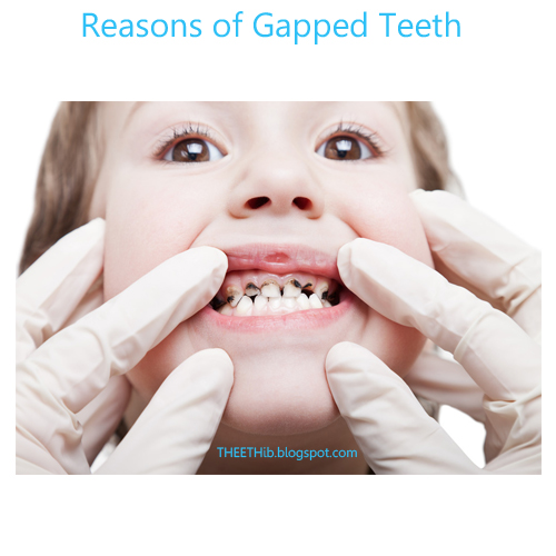Reasons of Gapped Teeth The fraenum or fraenulum that attaches the highest  lip to the higher portion of the gum is named the jaw labial fraenum.