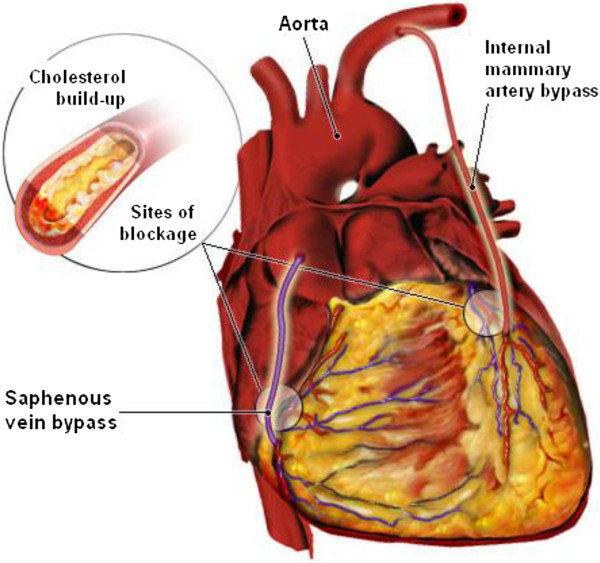 h-graft anastomosis