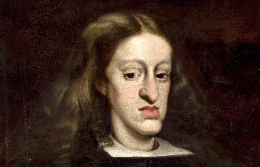 Habsburg Jaw Of Charles II