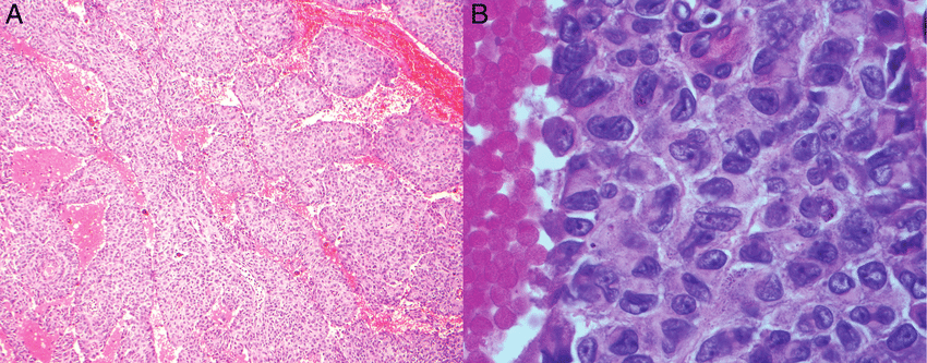 (A) Haematoxylin and eosin stain (H&E stain) of the tumour shows elongated  plates/bands of tumour cells with trabecular architecture (10×).