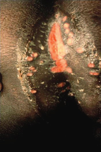 5 Extensive perianal ulceration resulting from a Haemophilus ducreyi  infection in a sex worker. (