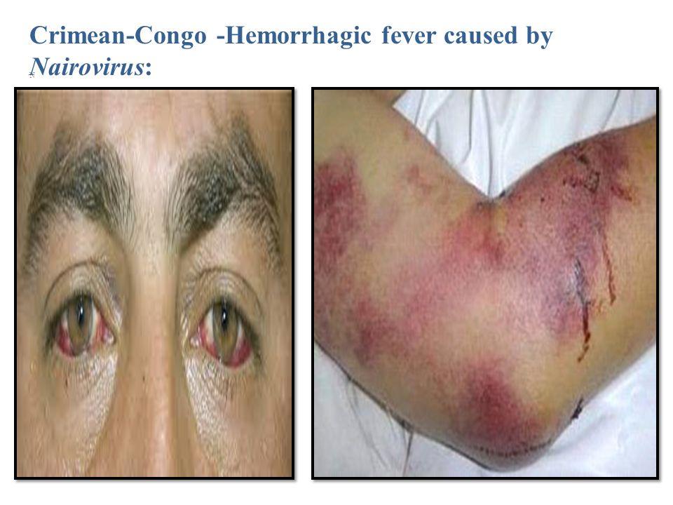 13 Crimean-Congo -Hemorrhagic fever caused by Nairovirus: