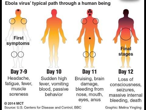 About Ebola Hemorrhagic Fever