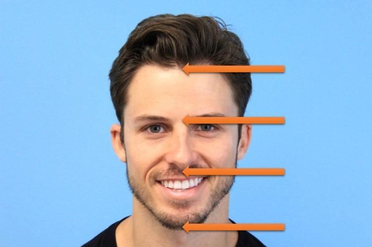 Hairline Design on Male