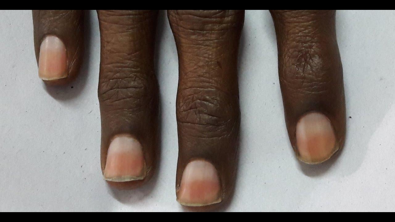 Chronic Liver Failure | Half and Half Nails