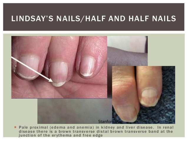 half and half nail