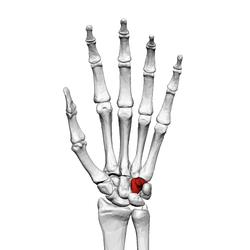 Hamate bone