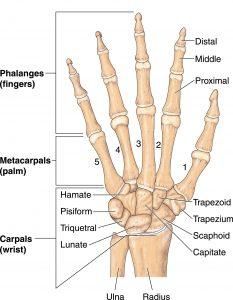 fractured hamate bone