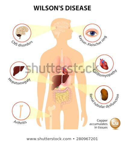 Wilsons disease or hepatolenticular degeneration. Signs and symptoms