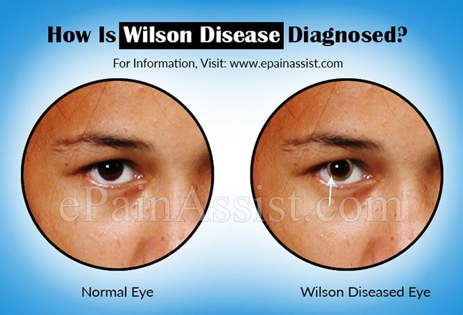 How Is Wilson Disease Or Hepatolenticular Degeneration Diagnosed?