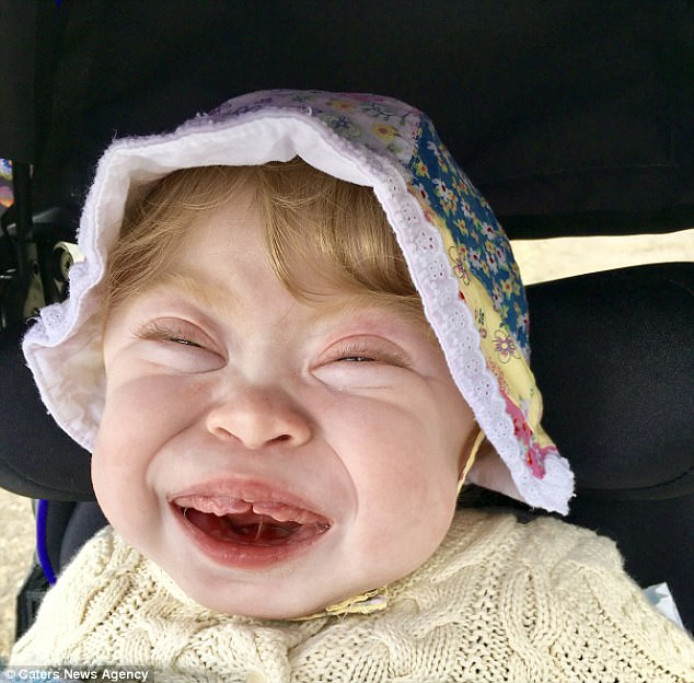 Willow Rae Porter, 22-months-old has inclusive-cell (i-