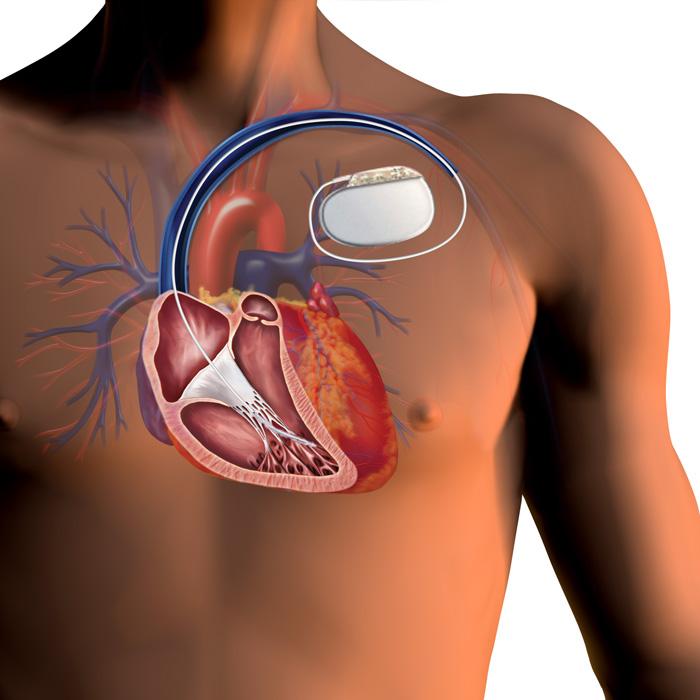 Figure-4-ICD-image