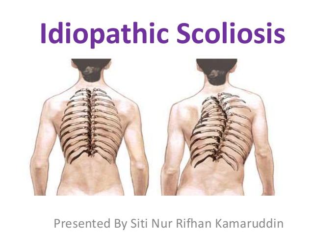Idiopathic Scoliosis Presented By Siti Nur Rifhan Kamaruddin