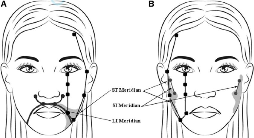 (A) Trigeminal neuralgia meridian mapping. (B) persistent idiopathic facial  pain meridian