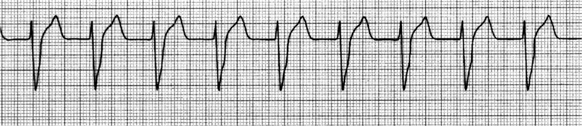 Accelerated idioventricular rhythm at a rate of approximately 80 beats per  min.