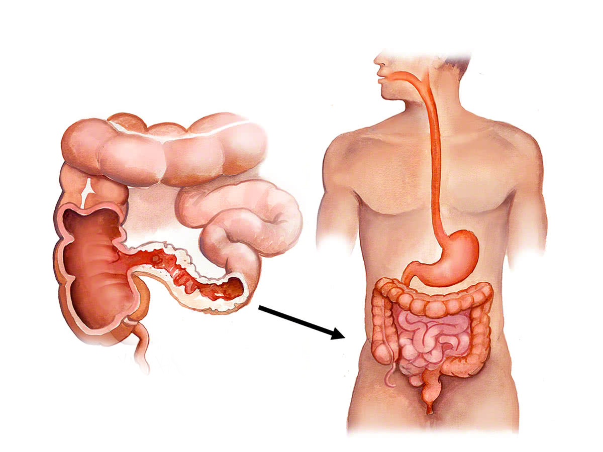 Terminal ileitis is a chronic inflammatory disease of one or more sections  of the intestine that involves only the end of the small intestine or  terminal