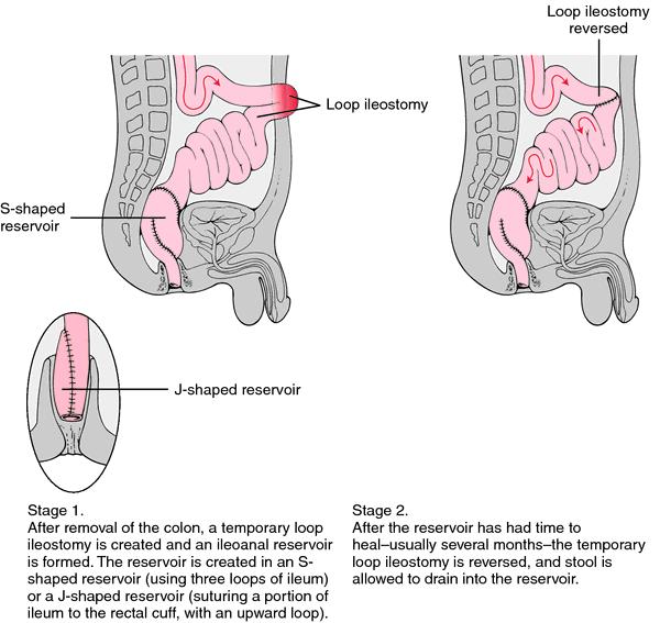 Ileoanal reservoir | definition of ileoanal reservoir by Medical dictionary