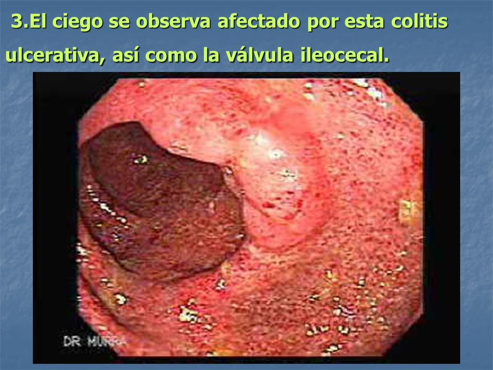 ileocolitis ulcerosa chronica