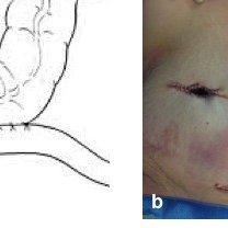 Double-barreled ileocolostomy. a) Schematic representation of the  double-barreled ileocolostomy;