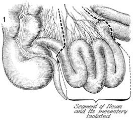 ileoileostomy