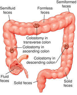 Ileotransverse colostomy | definition of ileotransverse colostomy by  Medical dictionary