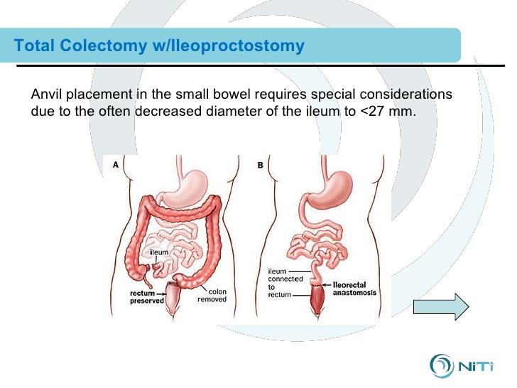ileoproctostomy