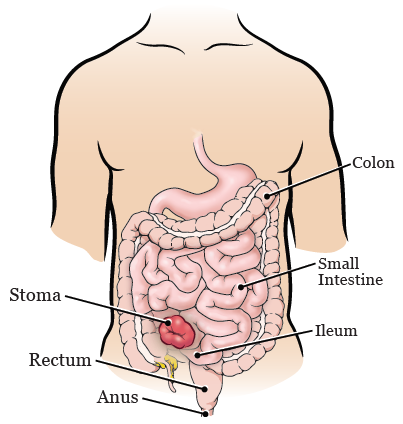 Figure 1. Your stoma