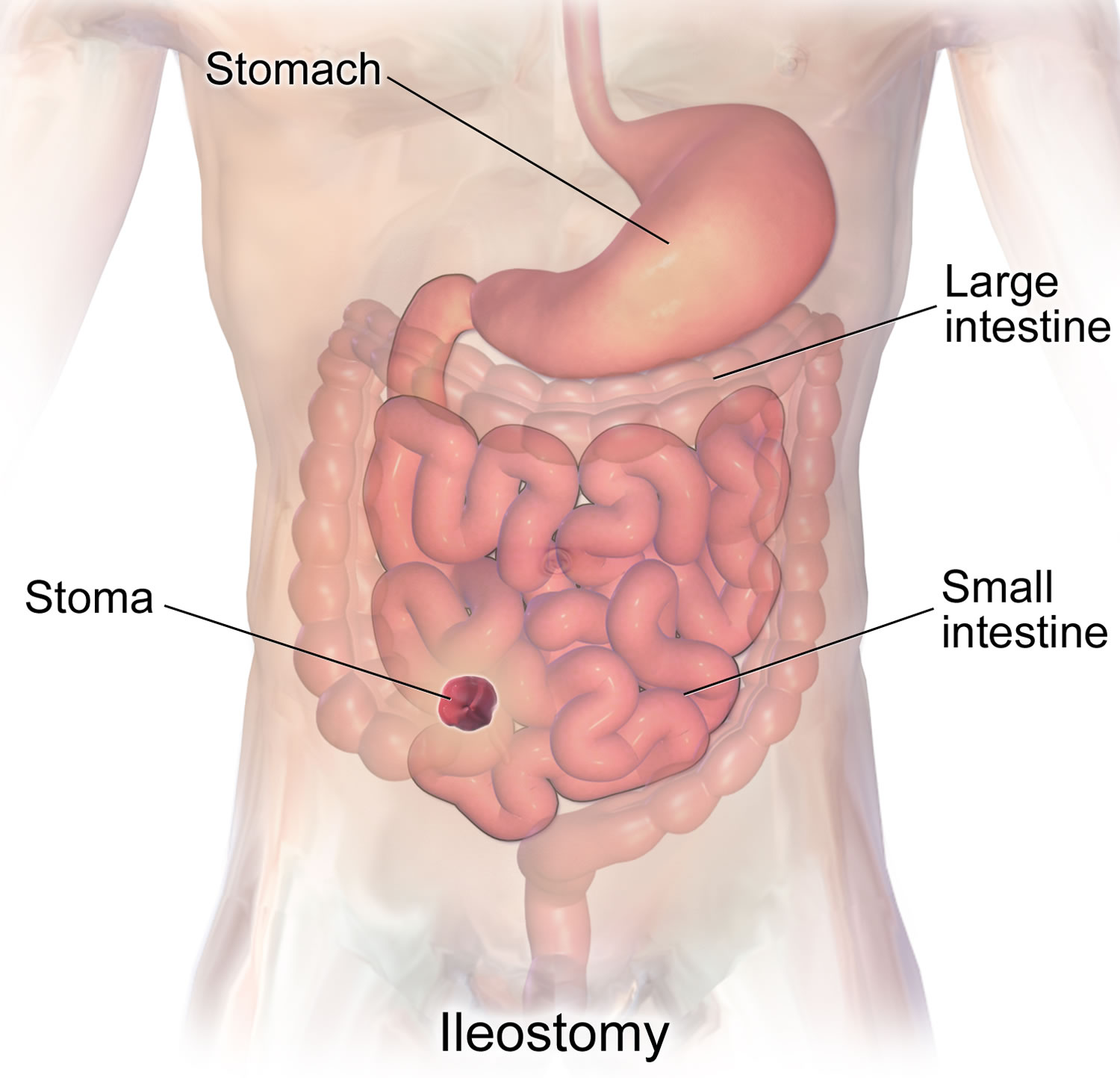 ileostomy