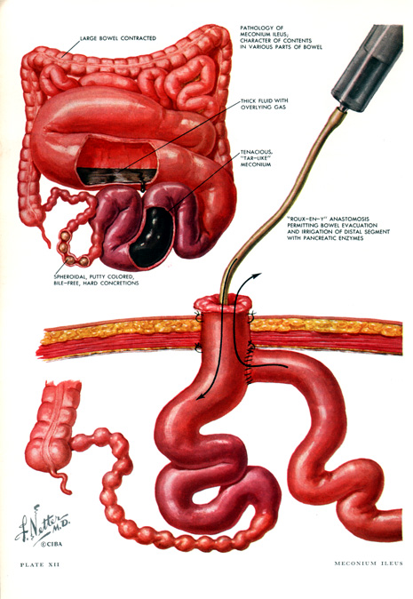 The essential part of the operation is creation of an ileotomy and  irrigation of the intestine both proximal and distal with an acetylcysteine  solution,