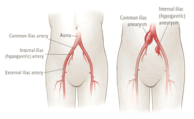 Causes of iliac aneurysm