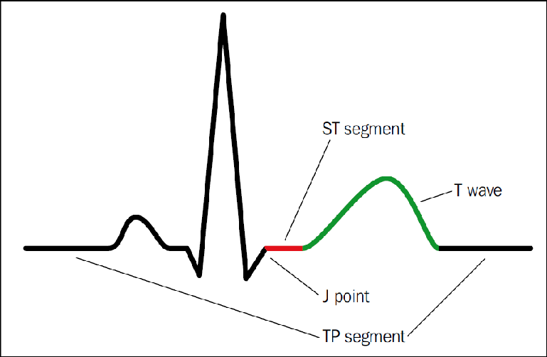 The ST segment (in red) starts at the J point, and is isoelectric